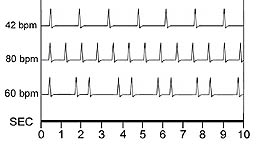 Some of my typical weird heart rhythms
